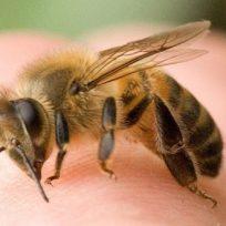 cosa-fare-come-agire-puntura-vespe-api-calabroni